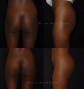 Prothèses de fesses pour augmentation du volume des fesses (implants fessiers)