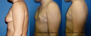 Gynécomastie mixte adipeuse et glandulaire avec lifting cutané