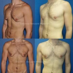 Gynécomastie chez l'homme suite à perte de poids, cutanée pure