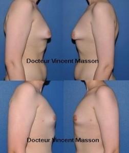 Gynécomastie hormonale technique round block