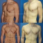 Gynécomastie chez l'homme cicatrice autour de l'aréole ou round block, technique mixte de résection glandulaire et de liposuccion avant après