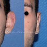 Otoplastie par technique conventionnelle, cicatrice derrière l'oreille et points de plicature au niveau du cartilage de l'oreille