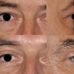 Blépharoplastie des paupières supérieures pour retirer l'excès de peau naturellement présent avec l'âge