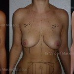 implants mammaires liposuccion