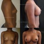 Prothèses mammaires extra haut profil cicatrice sous mammaire rondes pour passage d'un A à un bonnet D, volume de 550 cc