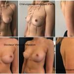 augmentation mammaire par prothèses en silicone cicatrice sous mammaire avant après