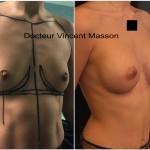 Augmentation mammaire par prothèses en dual plan cicatrice sillon sous mammaire dual plan profil modéré