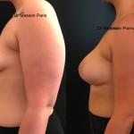avant après prothèses mammaires