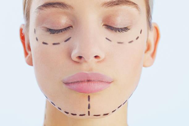 Greffe de cellules souches pour régénérer la peau