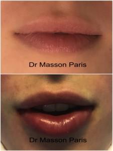 augmentation du volume des lèvres par injection d'acide hyaluronique avant après ou graisse
