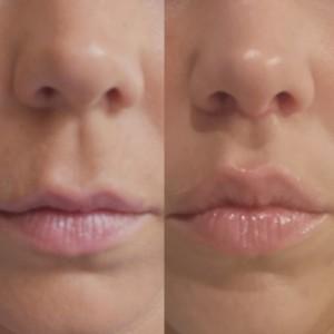 illustration cicatrice et résultat lifting de la lèvre supérieure