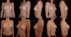 Lipofilling des seins pour augmentation mammaire