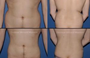 Lipoaspiration de l'abdomen ou liposuccion du ventre et des flancs (Poignées d'amour)