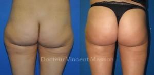 Lipomodelage des fesses avec lipoaspiration des hanches