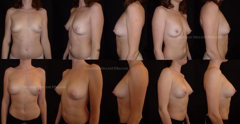Lipofilling des seins pour augmentation mammaire naturelle