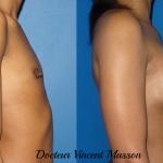 Agénésie du sein, hypoplasie sévère avec correction par implants mammaires
