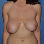 Asymétrie mammaire avec ptose