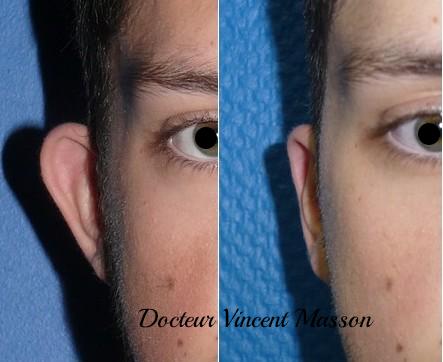 Otoplastie pour recoller les oreilles décollées Dr Vincent Masson
