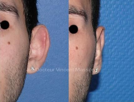 Otoplastie pour oreille décollée Dr Vincent Masson