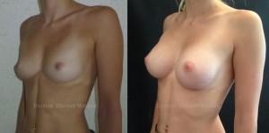 Implants mammaires avant après technique dual plan 300cc