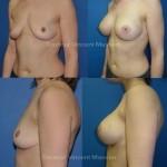 Prothèses mammaires retromusculaires par voie aréolaire de forme ronde de 360 cc