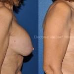 Correction prothèses mammaires avec passage d'un retromusculaire à une position plus naturelle de dual pan