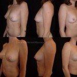 lipofilling mammaire à paris