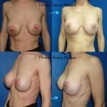 Correction prothèses mammaires en premusculaires qui tombent avec les années, passage en retromuscvilaire et plastie cutanée en T