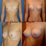 Prothèses mammaires rondes premusculaires de 250 cc avec abord sous mammaire