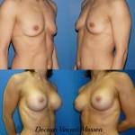 Prothèses mammaires retromusculaires pures de profil haut, rondes, de 360 ml