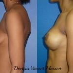 Prothèses mammaires sur peau noire pour traitement d'un ptose post grossesses, cicatrice sous mammaire pour abaissement du sillon et profil haut