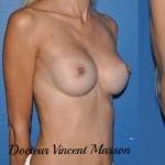 Prothèses mammaires par voie axillaire sous l'aisselle, forme ronde en position retromusculaire