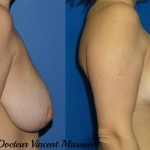 chirurgie esthetique réduction mammaire