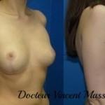 Correction prothèses mammaires mises en premusculaire avec ptose secondaire par absence de soutien musculaire, passage en position rétro musculaire