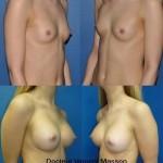 Prothèses mammaires retromusculaires pures avec aspect très rempli de la partie haute du sein, prothèses de haut profil de 330 cc