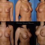 Prothèses mammaires de haut profil en retromusculaire bonnet D de 350 cc