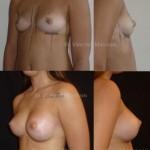 Prothèses mammaires en position retromusculaires forme anatomique et non ronde, abord sous mammaire