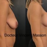avant après cure de pose mammaire avec implants mammaires cicatrices