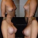Prothèses mammaires de haut profil en dual plan, volume 390 ml par voie sous mammaire