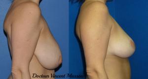 Réduction de volume des seins par réduction mammaire pour hypertrophie mammaire
