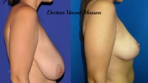 Réduction ptose mammaire avec hypertrophie du volume des seins par technique en T
