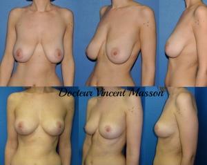 Réduction des seins par technique de réduction mammaire, photo avant après