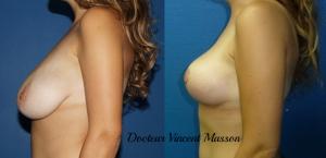 Réduction mammaire : réduire le volume des seins pour hypertrophie mammaire