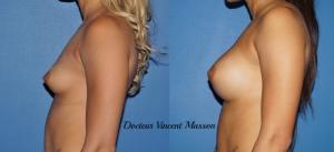 Augmentation mammaire naturelle par prothèses mammaires à Paris en Dual Plan