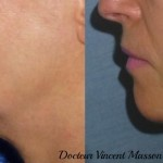 Mini lifting ou soft lifting du cou et de l'ovale du visage avec technique de plicature du smas