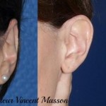 Otoplastie (oreilles décollées) avec plicature du cartilage pour correction du concha valga