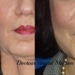 Lipofilling du visage par transfert autologue de graisse afin de combler des défects de volume au niveau du visage séquelles d'accident.