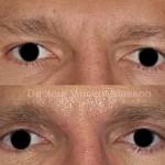 Blépharoplastie supérieure pour correction d'un dermatochalasis ou excès de peau de la paupière supérieure